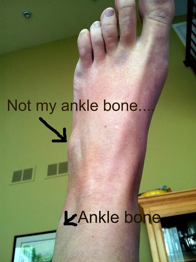 Sprained Foot 7
